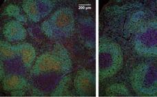 Investigadores españoles descubren un mecanismo esencial en la respuesta inmune del organismo