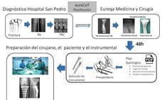 El Hospital Universitario de Cáceres utiliza impresión 3D para replicar huesos
