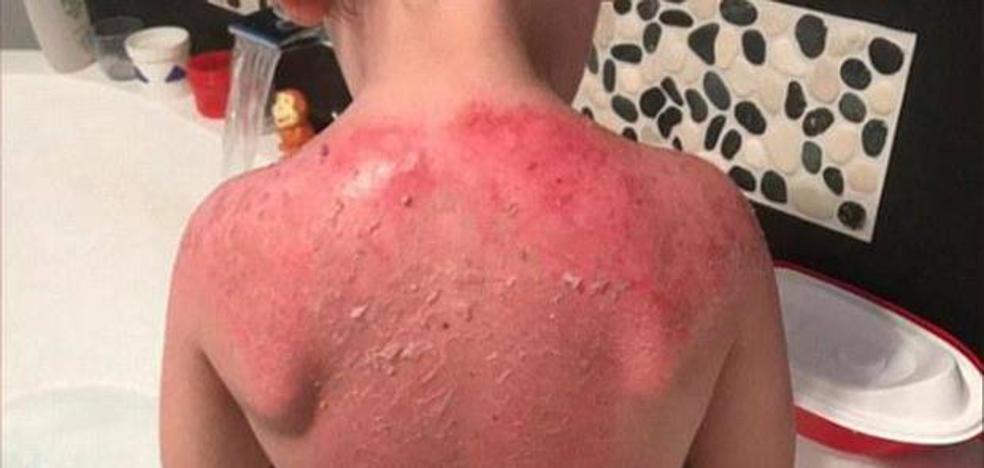 Un niño de tres años sufre graves quemaduras tras usar un protector solar de Peppa Pig