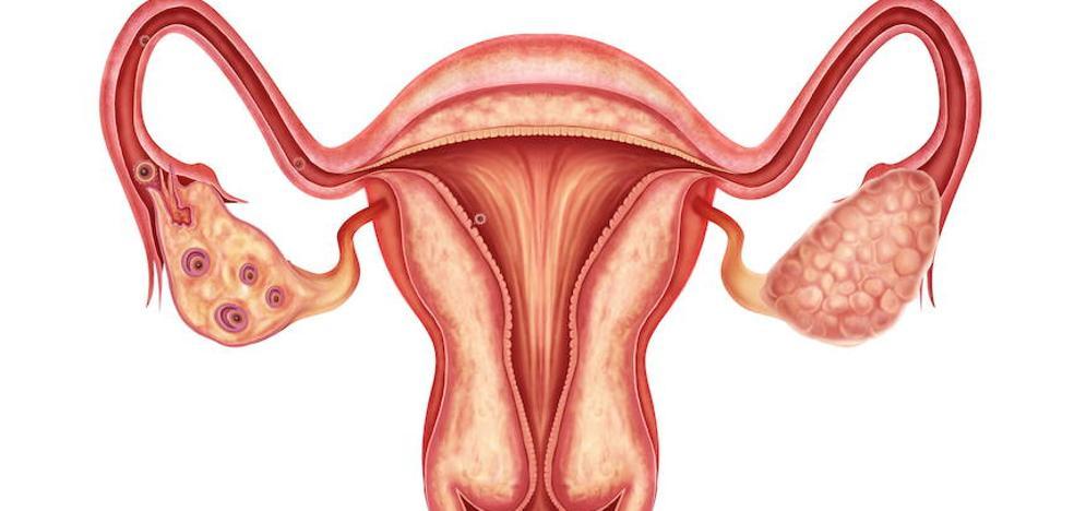 Un estudio pionero extremeño sobre el cáncer de ovario revela que el 16% es hereditario