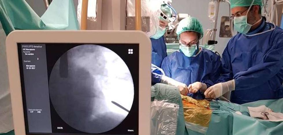 El complejo hospitalario de Badajoz, pionero en implantar una nueva válvula aórtica