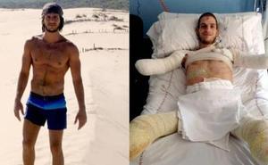 La lucha de Davide Morana para recuperar sus brazos y piernas