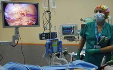 Extremadura es uno de los «puntos negros» en cribado de cáncer de colon