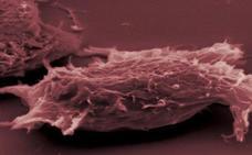 Usar terapias alternativas se asocia al rechazo del tratamiento convencional del cáncer