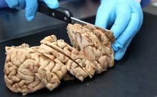 Investigadores descubren un nuevo subtipo de esclerosis múltiple