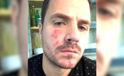 Dani Martín comparte un problema de piel con sus seguidores