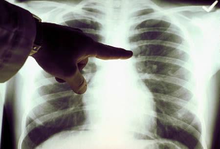 Un nuevo sistema permite el diagnóstico precoz del cáncer de pulmón