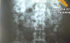 Detenido un extremeño con 216 bellotas de hachís en el interior de su cuerpo