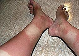Una Calzado Sufrió Pies En Que Los Por Indemnizan Mujer A Lesiones PwkX80nO